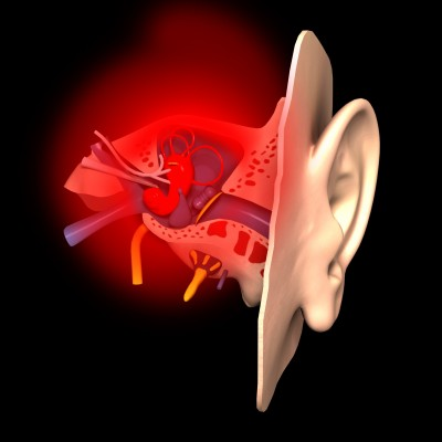 Inner Ear Inflammation